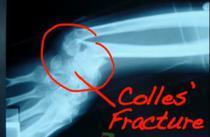 Fractura osteoporotica Captura