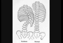 Scolioza deformeaza coloana vertebrala