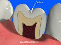 Sigilarile protejeaza dintii de carii