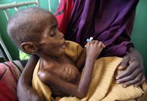 Foametea din Somalia