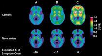 Detectare precoce a bolii Alzheimer