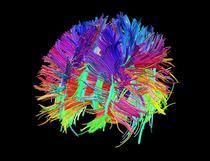 Imagine a creierului uman