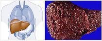 Fibroza hepatica