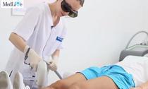 Laserul Soprano pentru epilare definitiva