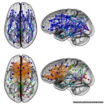 Hartile creierului demonstreaza diferentele dintre creierul masculin (albastru) si cel feminin (portocaliu)