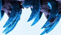 Dintii melcului acvatic observati la microscop