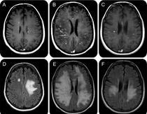 Modificari ale creierului in scleroza multipla