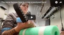 Un tetraplegic isi poate refolosi mana