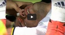 Accidentare grava pentru atacantul Robin van Persie