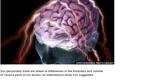 Science Report: Inginerii de la Universitatea Columbia reproduc direct în vorbire semnalele creierului