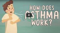 Astm bronsic