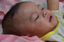 Bebelus bolnav de rujeola