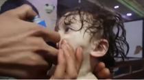 Copil tratat dup un atac chimic in Ghouta