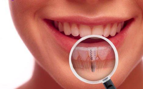 implanturi_dentare_dr