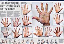 Cum arata mainile jucatorilor de top din tenis