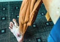 Piciorul lui Janez Brajkovic