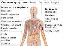 Coronavirus. COVID 19. 308 cazuri noi astăzi