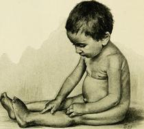 Paralizie acuta flasca