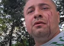 Activistul buzoian batut de fata cu politia