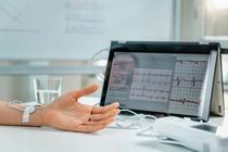 Ritmul cardiac influenteaza longevitatea